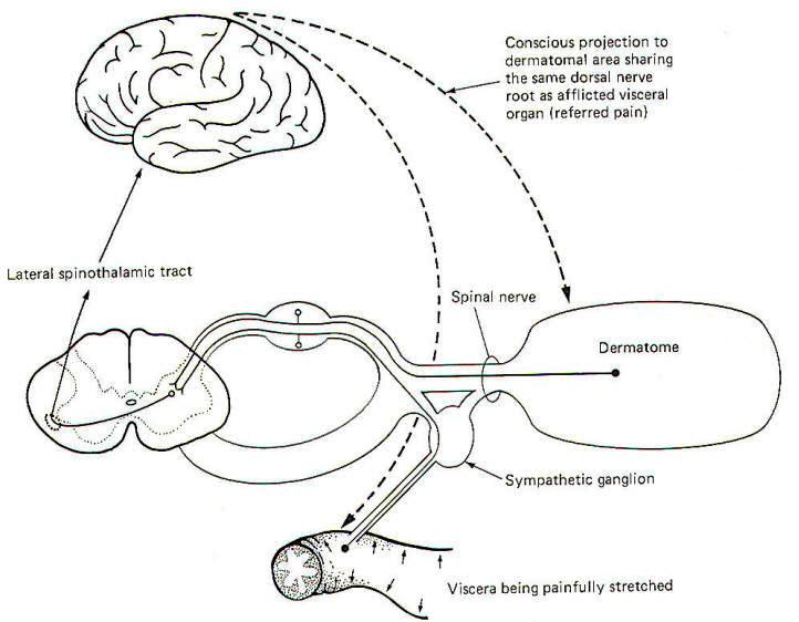neural pathways and mechanisms in pain sensation In this paper, the relationships between neural mechanisms of persistent pain and the neural representations of these conditions in the human and animal brain will be reviewed animal models of chronic pain, such as the sciatic nerve constrictive injuries, are accompanied by somatotopically.